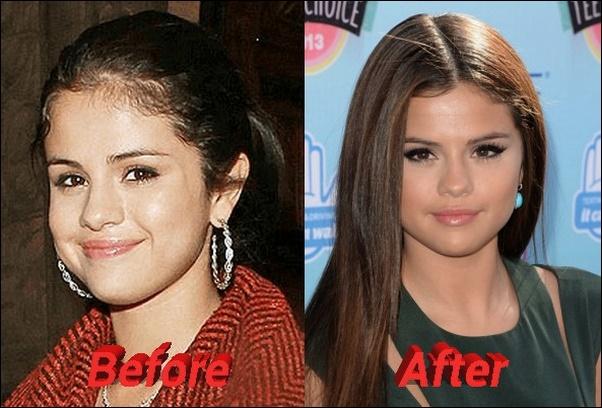 Selena Gomez Nase Job vor und nach Nasenkorrektur Fotos
