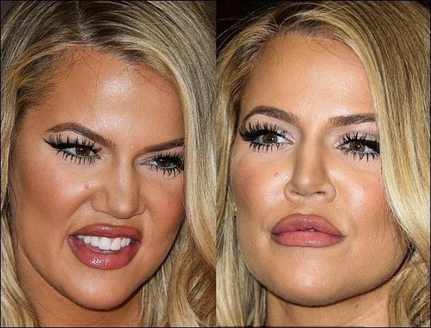 Khloe Kardashian falsche plastische Chirurgie vor und nach Füller Fotos