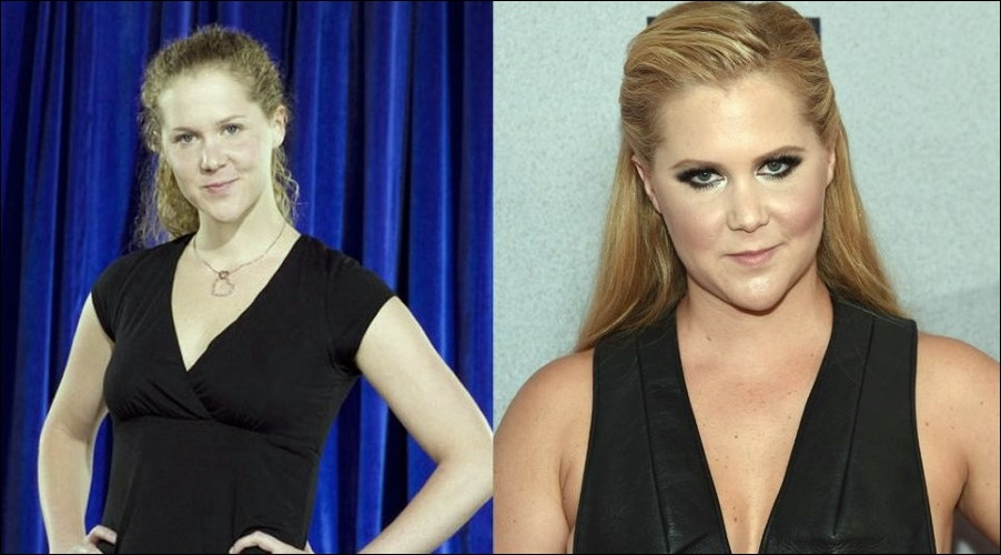 Amy Schumer Plastische Operationen
