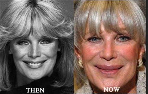 Linda Evans Plastische Chirurgie Nightmare