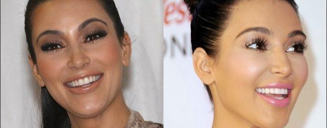 Kim Kardashian Porzellan Veneers vor und nach den Bildern