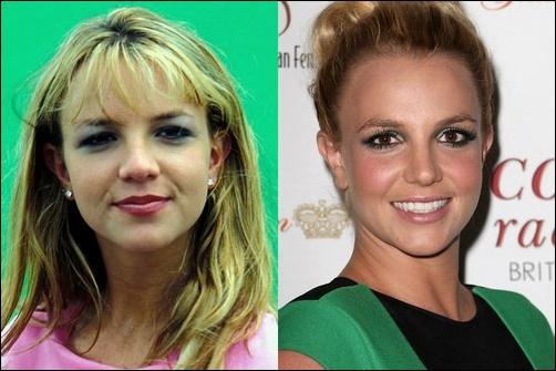 Britney Spears Nase Job Plastische Chirurgie vor und nach Nasenkorrektur