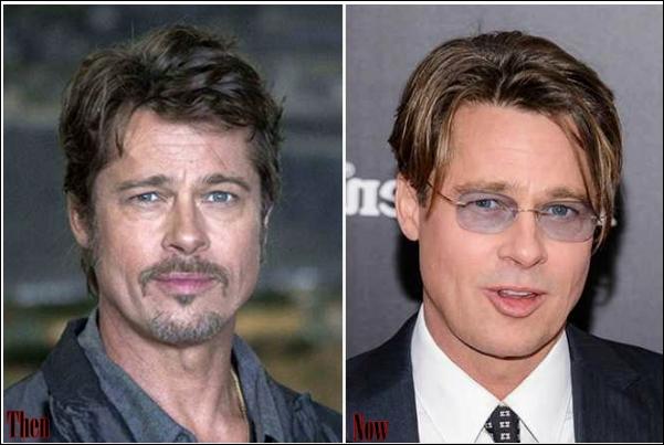Promi Männchen Plastische Chirurgie vor und nach Fotos