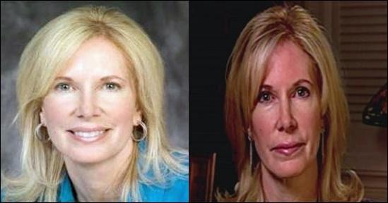 Beth Holloway Plastische Chirurgie vor und nach Fotos