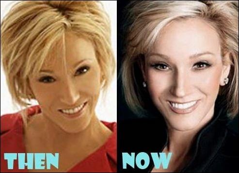 Paula White christliche Evangelist und plastische Chirurgie?