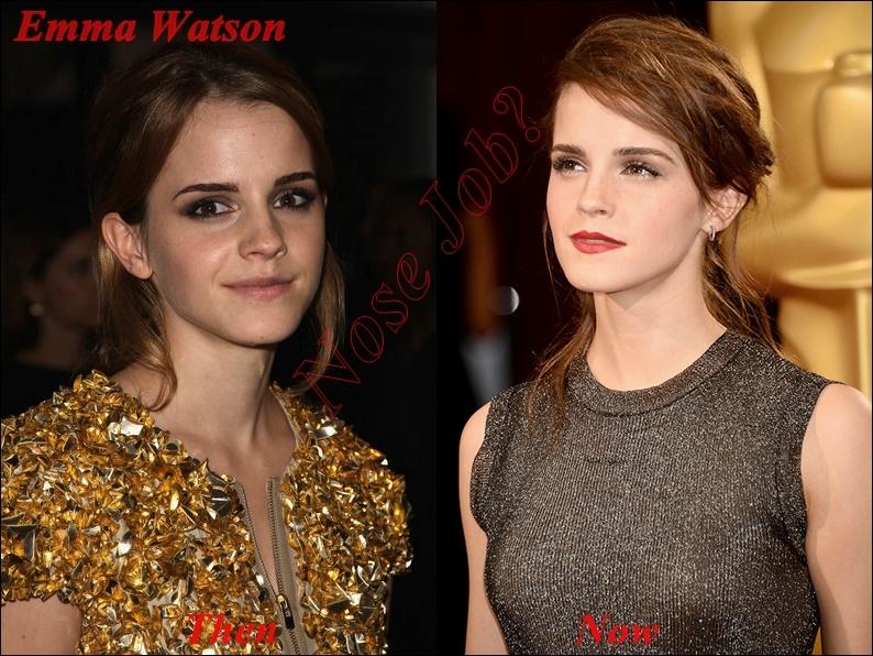 Hatte Emma Watson Nasenoperation Plastische Chirurgie oder nicht