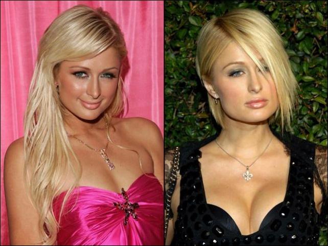 Paris Hilton Brustimplantate Plastische Chirurgie vor und nach Titten Job