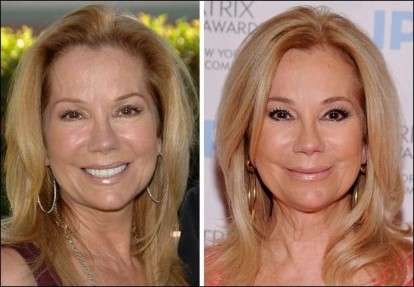 Kathie Lee Gifford Plastische Chirurgie vor und nach Kosmetik