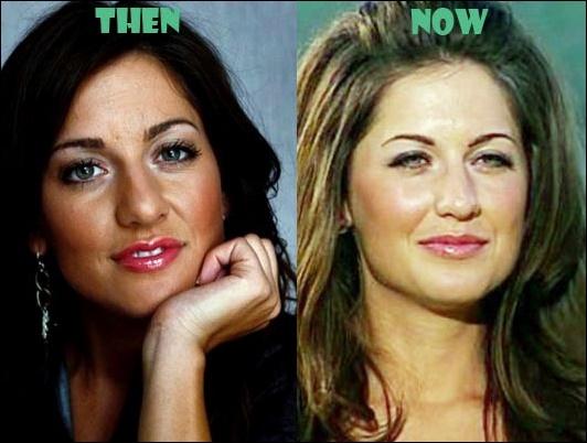 Jillian Harris Plastische Chirurgie vor und nach Nase Job Fotos