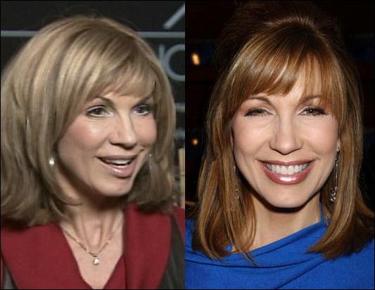 Leeza Gibbons Plastische Chirurgie vor und nach der Kosmetik Bilder