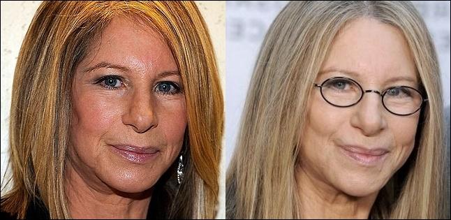 Barbra Streisand Plastische Chirurgie vor und nach Fotos
