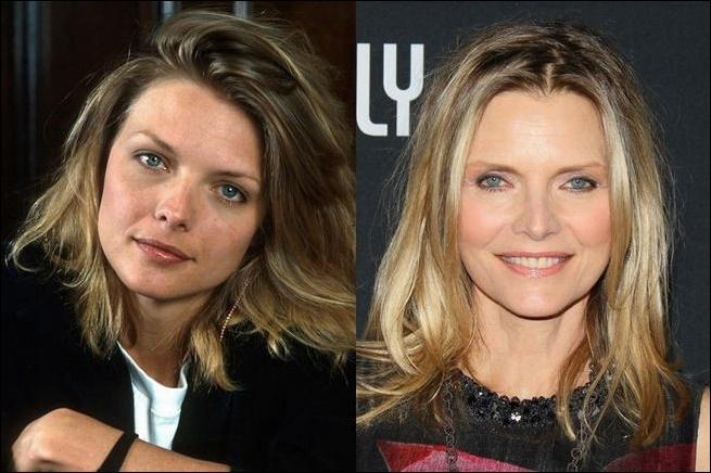 Michelle Pfeiffers zeitlose Schönheit: Plastische Chirurgie oder nicht?