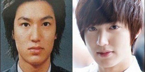 Lee Min Ho Plastische Chirurgie Gerüchte bestätigt!