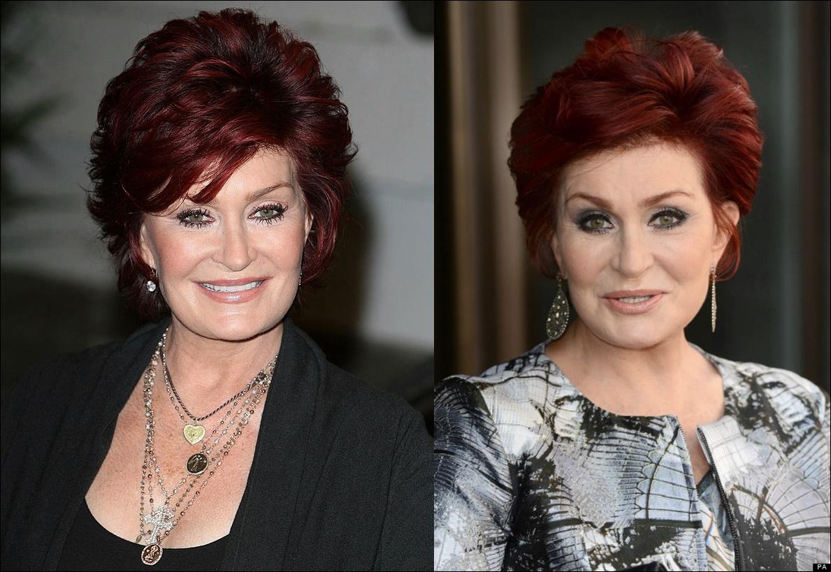 Sharon Osbourne vor der plastischen Chirurgie vor und nach Gesicht Fotos