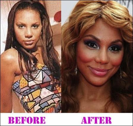 Haben die Braxton Schwestern Plastische Chirurgie vor und nach