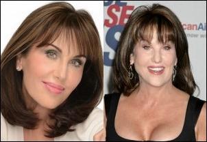 Robin McGraw Facelift vor und nach der plastischen Chirurgie