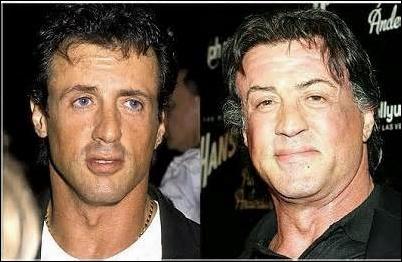Sylvester Stallone Hair Transplant vor und nach Bildern