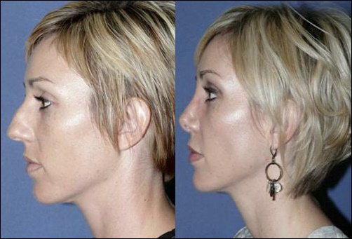 Best Nose Job Chirurg In Beverly Hills