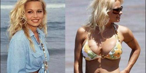Pamela Anderson Plastische Chirurgie schlecht gegangen