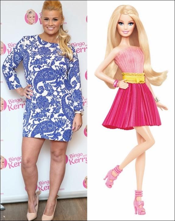 Kerry Katona Barbie Doll Plastische Chirurgie vor und nach Fotos