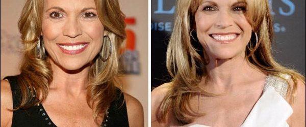Vanna White Plastic Surgery machte sie wunderschön aussehen
