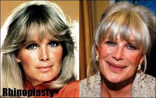 Linda Evans Plastische Chirurgie Vorher-Nachher Bilder