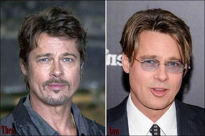 Brad Pitt Plastische Chirurgie vor und nach Facelift, Nase Job
