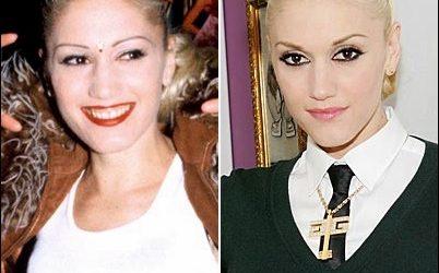 Gwen Stefani Nase Job Plastische Chirurgie vor und nach Fotos