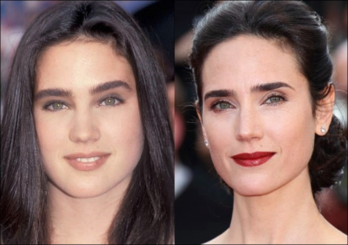 Jennifer Connelly Plastische Chirurgie