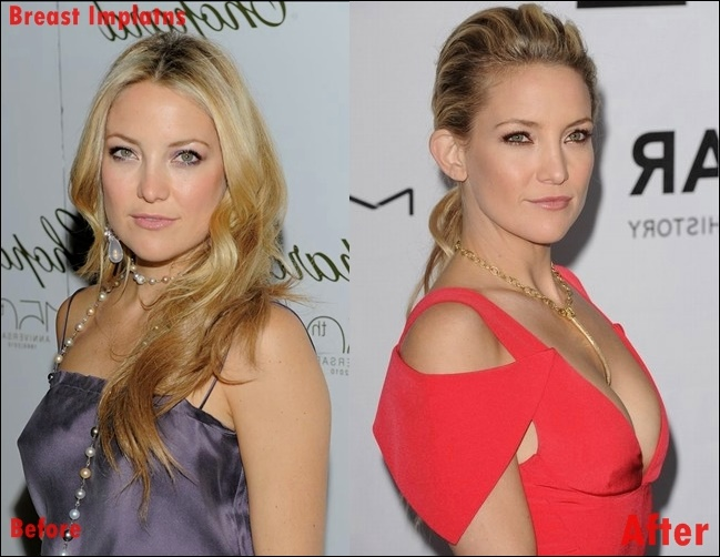 Kate Hudson Boobs Job plastische Chirurgie vor und nach Brustimplantaten