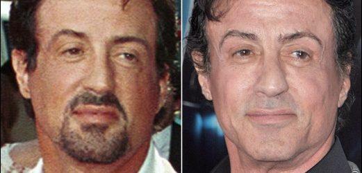 Sylvester Stallone Plastische Chirurgie vor und nach