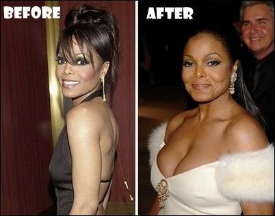 Janet Jackson Plastische Chirurgie Vorher-Nachher Bilder