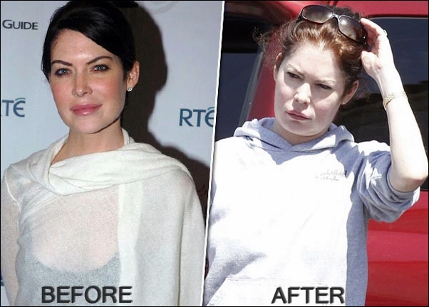 Worst Celebrity Plastic Surgery Vorher-Nachher Bilder