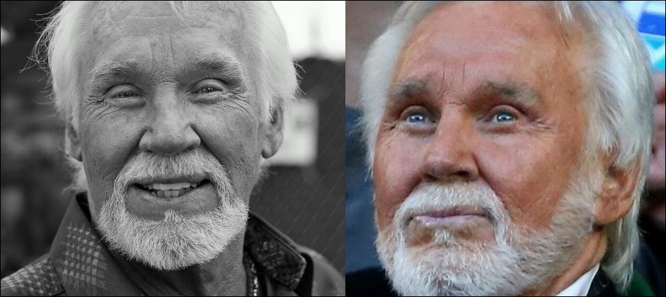 Kenny Rogers Plastische Chirurgie vor und nach Gesicht Fotos