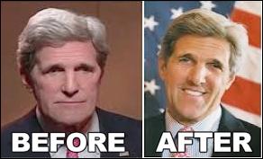 John Kerry plastische Chirurgie vor und nach Bildern