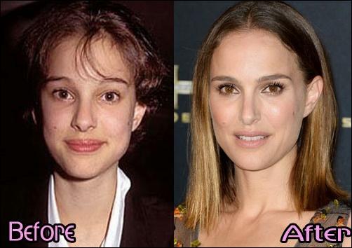 Natalie Portman Plastische Chirurgie vor und nach