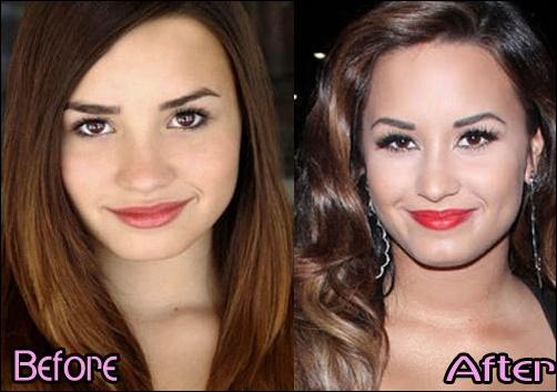 Demi Lovato Nase Job vor und nach der plastischen Chirurgie Fotos