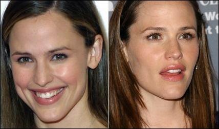 Jennifer Garner Plastische Chirurgie Vorher-Nachher Fotos