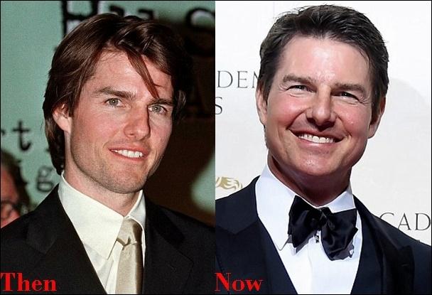 Tom Cruise Cosmetics Plastische Chirurgie vor und nach Gesicht Fotos