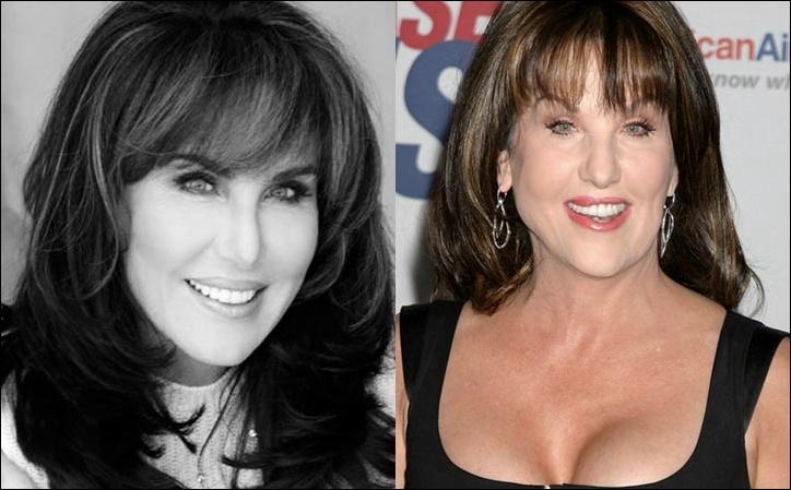 Robin Mcgraw Plastische Chirurgie vor und nach Lip, Botox Fotos