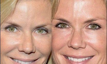 Katherine Kelly Lang Plastische Chirurgie - Sind die Gerüchte wahr?