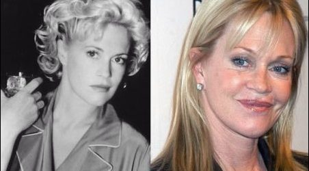 Melanie Griffith Plastische Chirurgie Gone Bad!