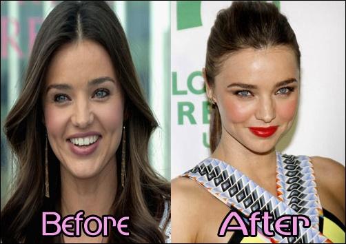 Miranda Kerr Plastische Chirurgie Vorher-Nachher Fotos