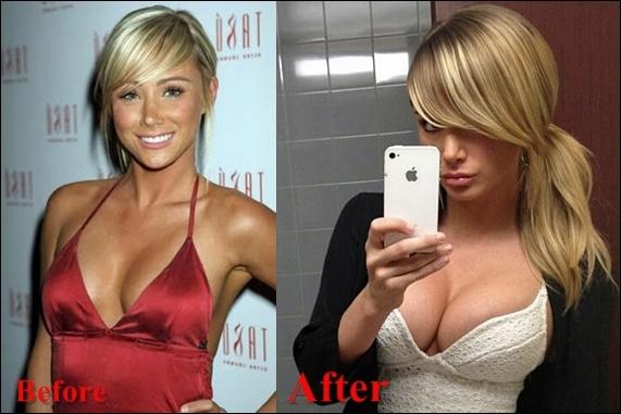 Sara Jean Underwood Brustimplantate Chirurgie vor und nach Titten Job-Fotos