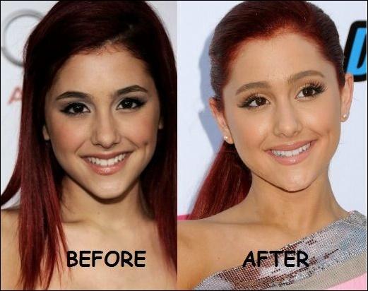 Ariana Grande Botched Plastische Chirurgie vor und nach Gesicht Fotos