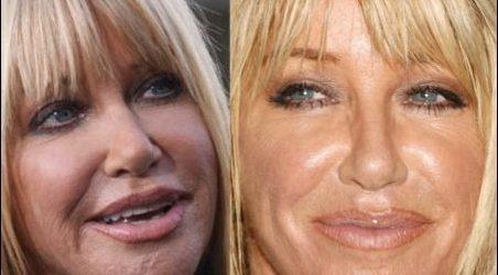 Suzanne Somers Plastische Chirurgie - Attribut ihres neuen Looks