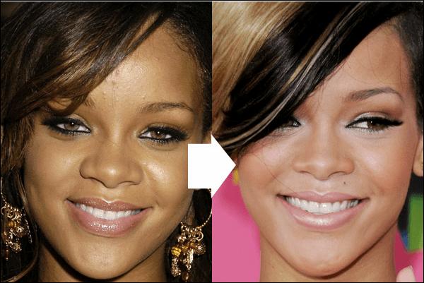 Rihanna Stirn reduzieren Größe Chirurgie vor und nach Fotos