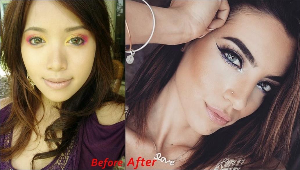 Michelle Phan Nase Job vor und nach Fotos