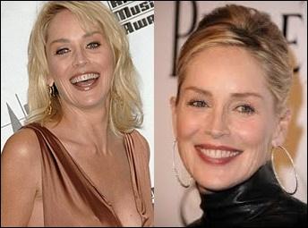Sharon Stone Plastische Chirurgie vor und nach Fotos