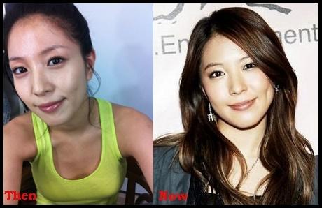 Boa Kwon Plastische Chirurgie vor und nach Kosmetik Fotos